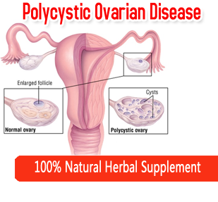 Polycystic Ovarian Disease (PCOD)